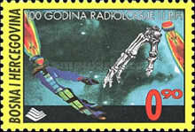 [The 100th Anniversary of Radiology in Bosnien-Herzegovina, Typ FO]
