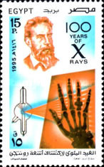 [The 100th Anniversary of Discovery of X-rays by Wilhelm Rontgen, Typ AJD]