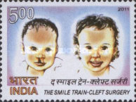 [The Smile Train - Cleft Surgery, Typ DAU]